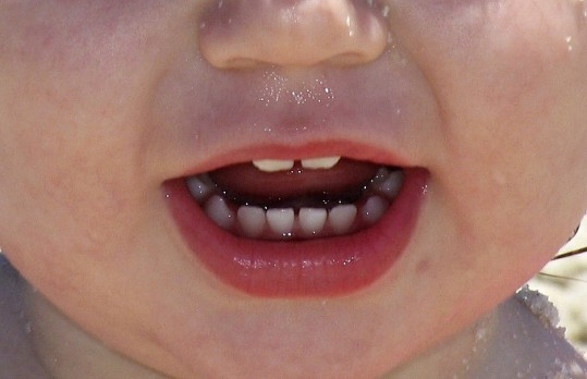 Can Tooth Decay be Healed Naturally?